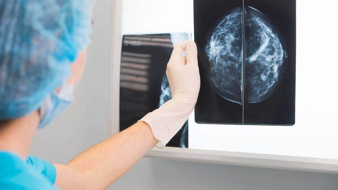 Ituzaingó: Turnos para Mamografías